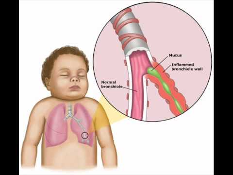 BRONCHIOLITIS 1, HEALTH EDUCATION , INFECTION CONTROL (ICSP) , URDU / HINDI