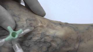 Veias da de de veias tratamento flórida clínicas