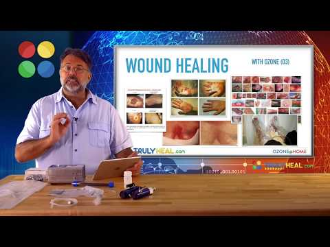 Ozone Diabetic Neuropathy (Fundamental Education About Ozone) | Wound Healing