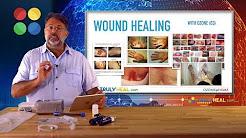 Ozone Diabetic Neuropathy (Fundamental education about Ozone) | Wound Healing