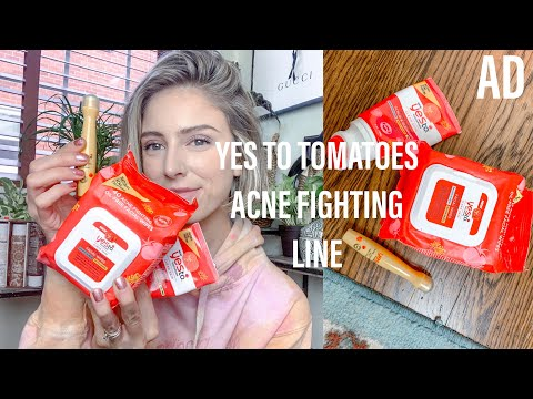 YES TO TOMATOES ACNE FIGHTING LINE | Budget Friendly Skincare For Acne | AD
