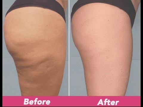 My Cellulite Solution Review Scam Or Not Youtube