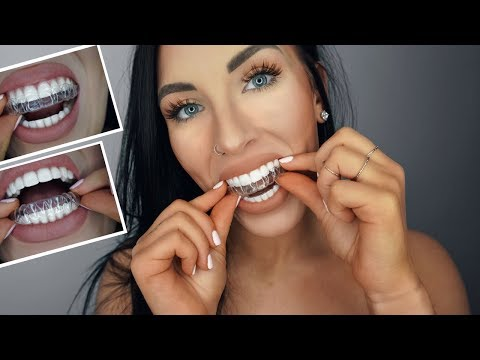 RETAINERS 101 (TAKING OFF & ON, HOW TO CLEAN, DO'S & DON'T'S)   Chels Nichole