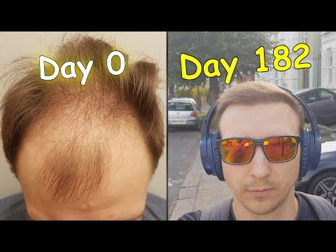 fue-hair-transplant-6-months-|-3500-grafts-result-2020