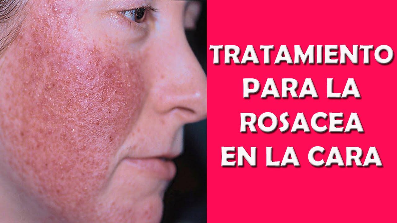 curar rosacea remedios naturales
