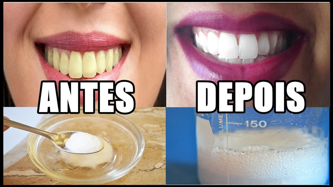 Dentes Brancos Na Hora Youtube