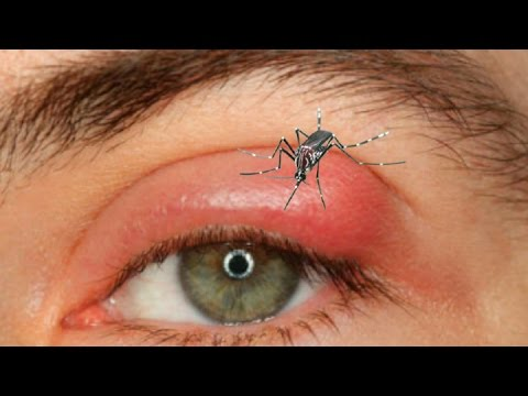 what should you do when mosquito bite on eyelid