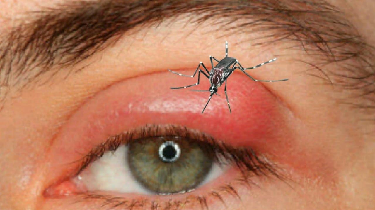 How To Treat Swollen Eyelid From Mosquito Bite | Amtmakeup co