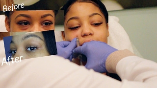 MY EYE FILLER INJECTION EXPERIENCE   LIVE FOOTAGE