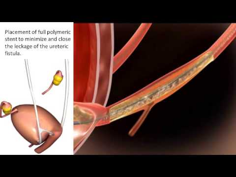 Urethral Stent Placement Dr. Joerg Neymeyer use...