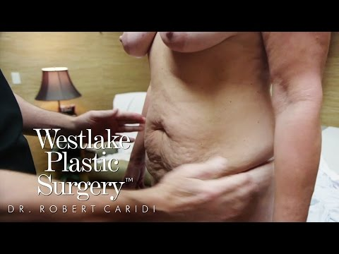 Mommy Makeover in Austin - Liposuction, Breast Lift and Tummy Tuck - Westlake Plastic Surgery