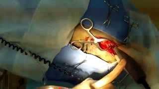 Грыжа диска в шейном отделе у собаки. Cervical disk disease