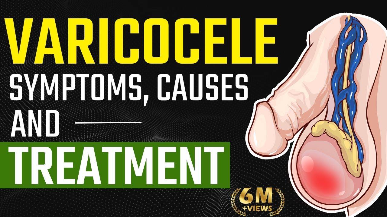 varicocele erekció a péniszen előforduló betegségek típusai