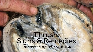 Thrush: Signs and Remedies