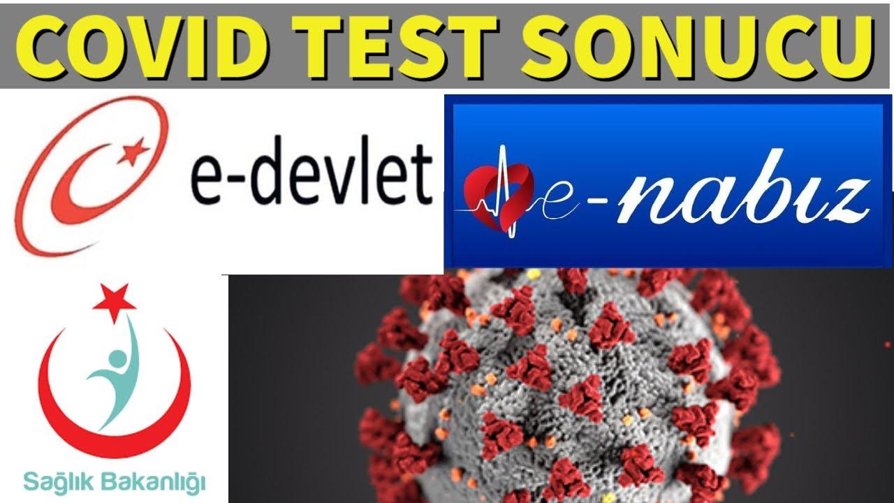 Covid 19 Test Sonucu Öğrenme