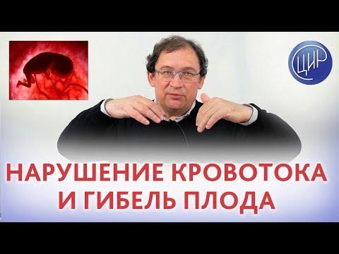 Кровоток плода. НАРУШЕНИЕ КРОВОТОКА и внутриутробная гибель плода. Как НЕ ДОПУСТИТЬ ПОВТОРЕНИЯ ?