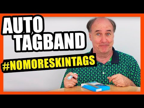Auto TagBand Review #NoMoreSkinTags
