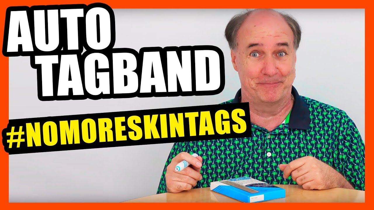 Auto Tagband Follow Up Skin Tag Success Youtube