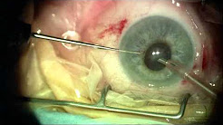 Cataract Surgery in a Small Pupil Flomax Patient Duke Eye Center