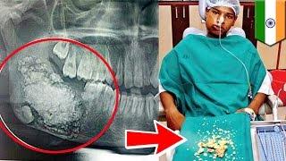 Dentyści usuwają chłopcu 232 zęby.