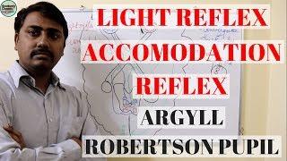 Baixar Argyll Robertson Pupil