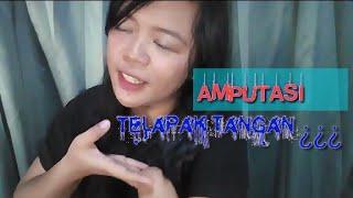 RASANYA SETELAH AMPUTASI    (Video motivation and just share)