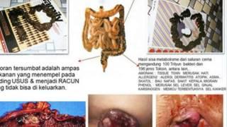 Mengatasi Perut Begah, 081-2325-78379 (Tsel), Perut Terasa Begah, Obat Perut Begah