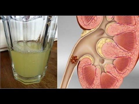 Limpia tu riñón y expulsa hasta la última piedra con solo beber media taza de esta bebida