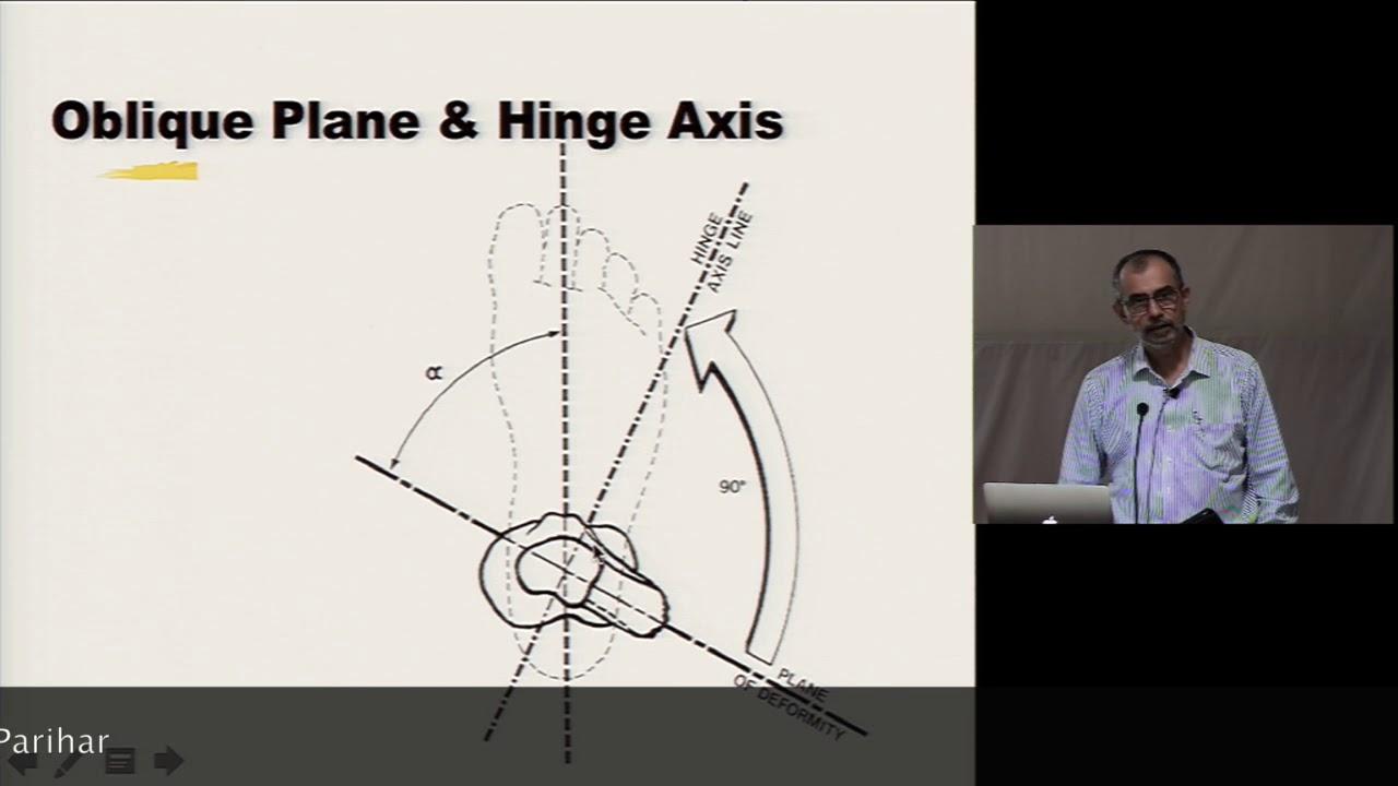 BOS Deformity Course Oblique Plane - YouTube