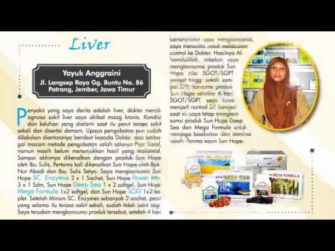 081225399444 (Telkomsel) Obat Herbal Penyakit Jantung Kronis