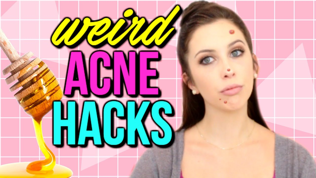 How to Get Rid of Acne FAST - WEIRD ACNE LIFE HACKS | Courtney Lundquist