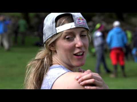 MBR Magazine Show Us Your Scars: Rachel Atherton #21