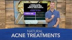 hqdefault - Nature Gate Natural Results Acne Treatment