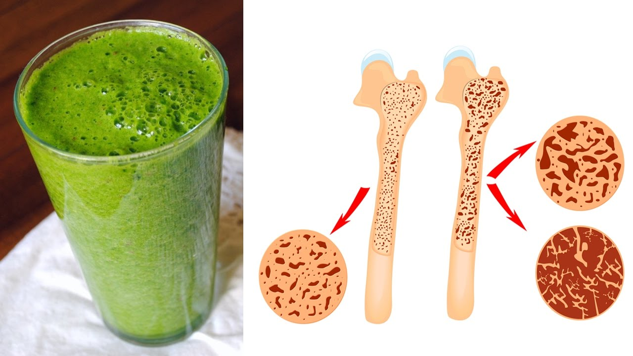 How to Build Healthy Bones (And Keep Them Strong)