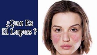 ¿Qué Es El Lupus ? - Lo Que Debemos Saber Sobre Esta Enfermedad