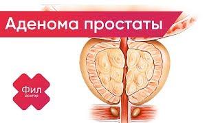 АДЕНОМА Простаты Лечение   АДЕНОМА Предстательной Железы Лечение    Аденома простаты симптомы cмотреть видео онлайн бесплатно в высоком качестве - HDVIDEO