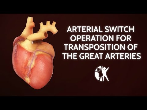 Arterial Switch Operation for Transposition of the Great Arteries | Cincinnati Children's