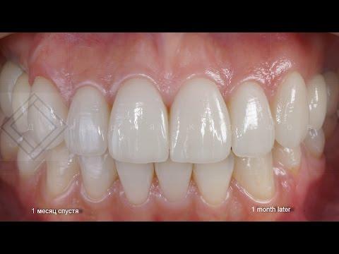 Покрытие зубов фторлаком: методика, цена, отзывы