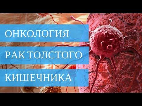 РАК ТОЛСТОГО КИШЕЧНИКА - лечение без операции!