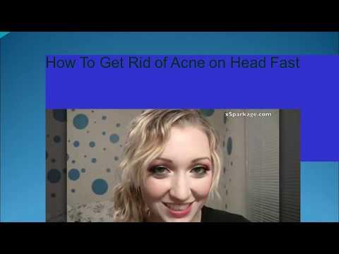 homemade-skin-care-tips-for-acne