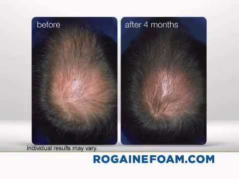 Rogaine for women does it work