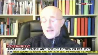 Head Transplant: Science Fiction Or Reality?