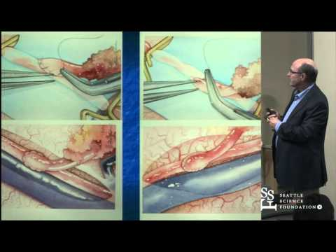 Cerebral Revascularization for Extra & Intracranial Disease by David Newell, M.D.