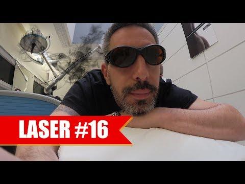 DÉTATOUAGE LASER #16 : RESTERA-T-IL DES TRACES ?