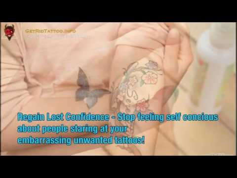 How Much To Get A Tattoo Removed – Everything you need to learn about tattoo remove. Site teaser