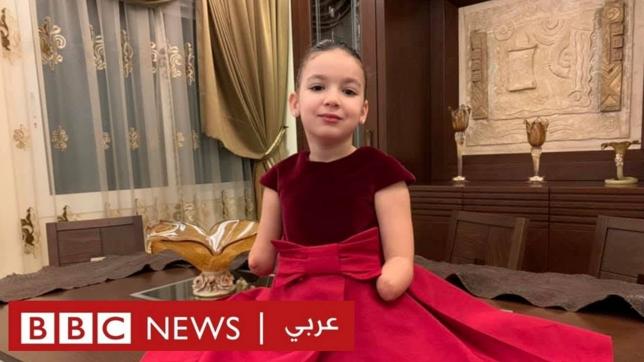 إضراب للأطباء في لبنان بعد حكم قضائي في قضية طفلة فقدت أطرافها  - 18:58-2021 / 5 / 12