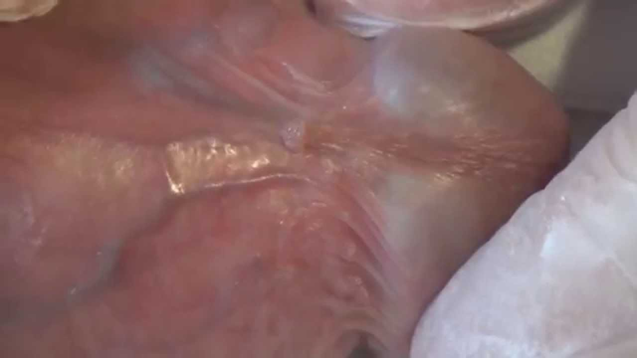 VPH En Los Hombres, parte 2, Las Verrugas Genitales o