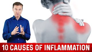 The 10 Causes of Inflammation
