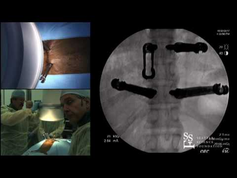 Minimally Invasive TL Fixation Demo by Andrew Dailey, M.D. &  John France, M.D.