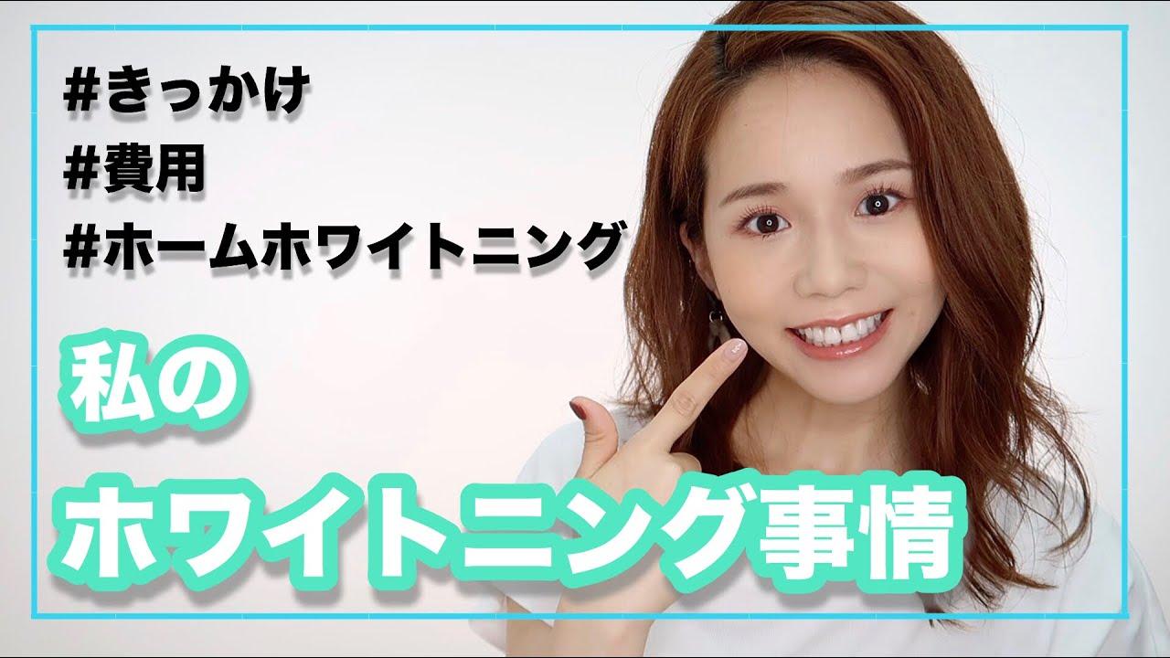 【デンタルケア】1回で歯が白くなるホームホワイトニング公開【アラサー美容】
